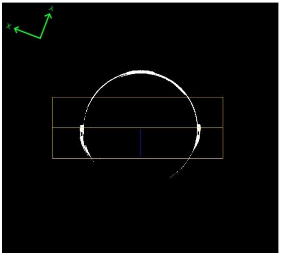 Abbildung 5: Definition der Bereiche für die Pixelzählung
